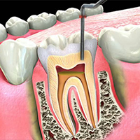 my dentist brookline root canal
