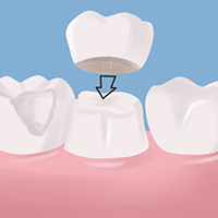 My Dentist Brookline Crowns